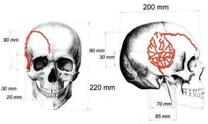 nicolai-skull