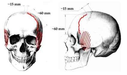 slobodin-skull